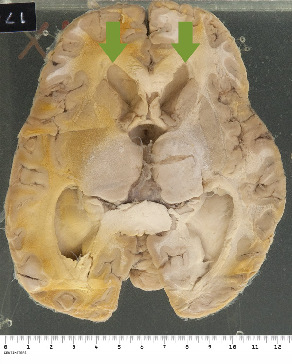 The reverse of the specimen shows striking symmetrical ventricular dilatation (as shown by rounding of the normally acute anterior horns near the top of the picture)