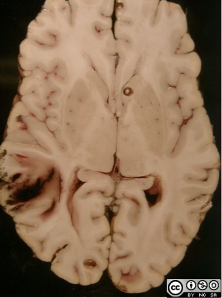 The specimen is an axial slice of the brain through the basal ganglia and thalamus.