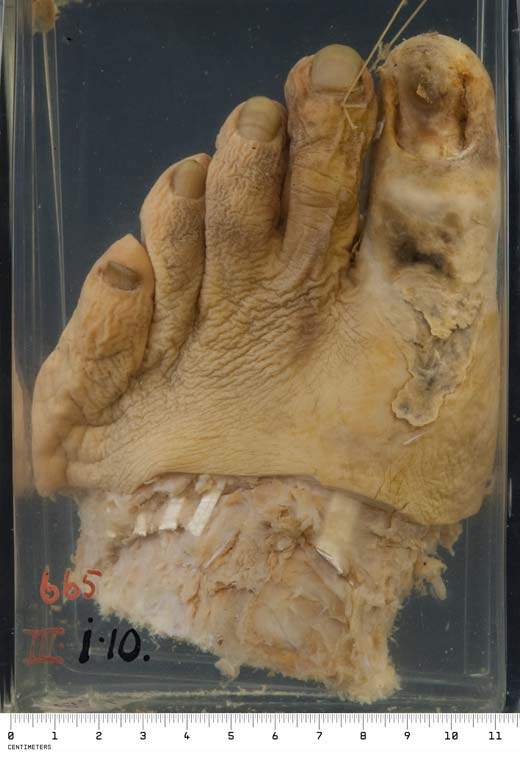 Photograph: Gangrene of the foot