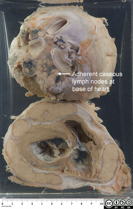 Adherent  caseous lymph nodes at base of heart.