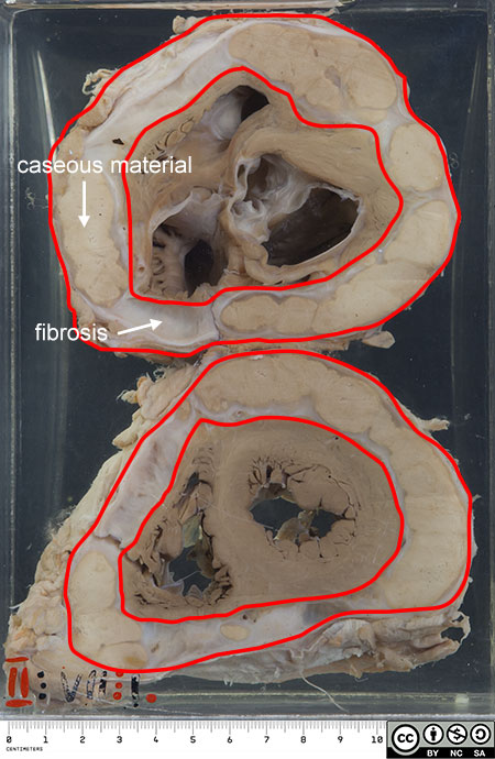 Here the pericardial cavity is grossly widened by large areas of caseation in a shell of organised fibrosis.