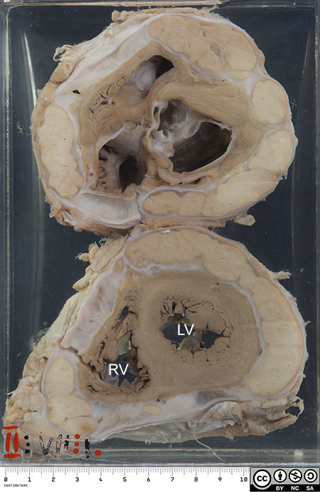 Here we have two transverse sections through a heart.