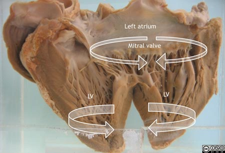 The heart has been opened in a vertical plane through the left atrium and ventricle.
