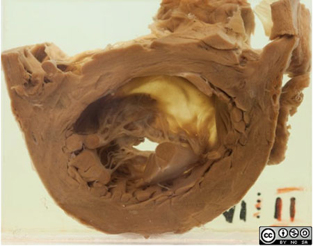 Here is the transected left ventricle, viewing the abnormal mitral valve from below.