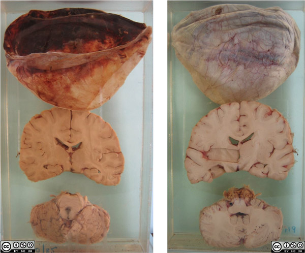 The patient was a 60 year old man from the central Karoo. He had apparently been unwell for two weeks. A history of trauma to the head was not obtained. On arrival at Groote Schuur Hospital he was comatose with fixed pupils, the right slightly larger than the left. A CT scan of the head showed a 20mm low density right-sided subdural collection, with an 18mm shift to the left. A chronic right sided subdural haematoma was evacuated via a right frontal burr hole. His level of consciousness improved slightly but temporarily, and he died of an aspiration pneumonia.