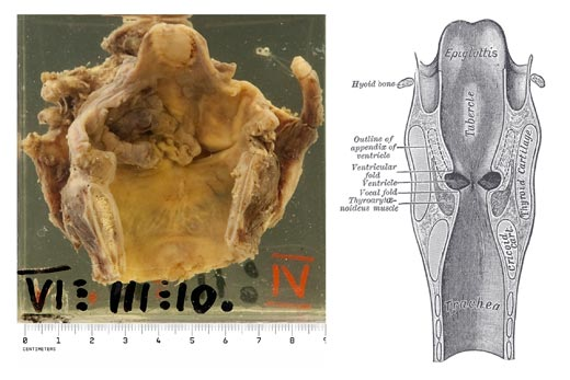 Specimen photograph and diagram: primary carcinoma of the larynx