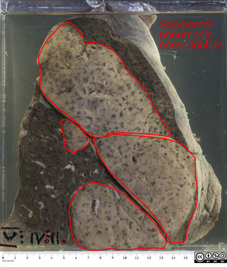 Left lung which has been partially sectioned to show the grey-white areas of pneumonic consolidation.