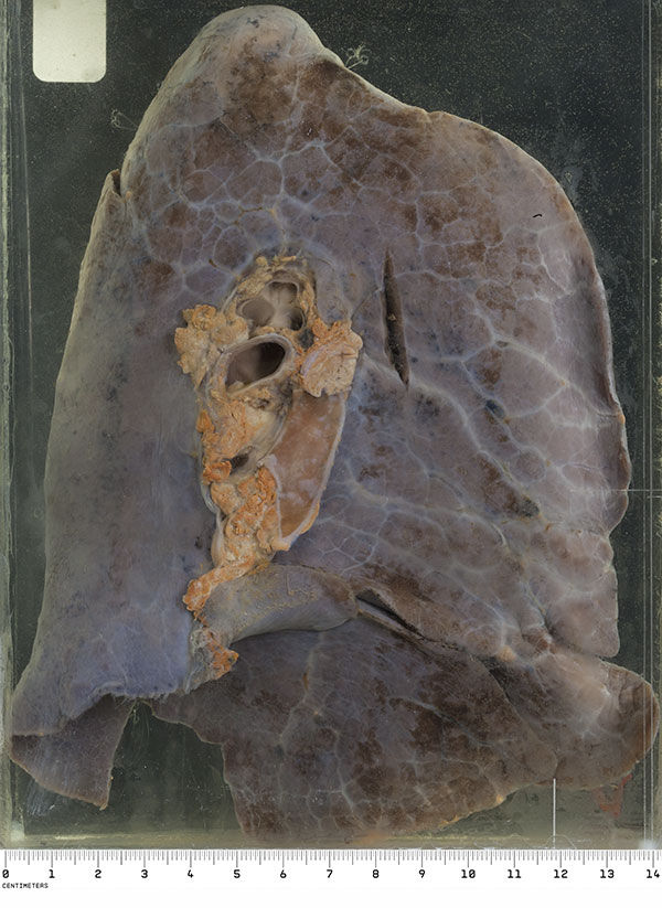 At post mortem his lungs were dark plum-coloured, with the external surfaces showing prominent lymphatics.