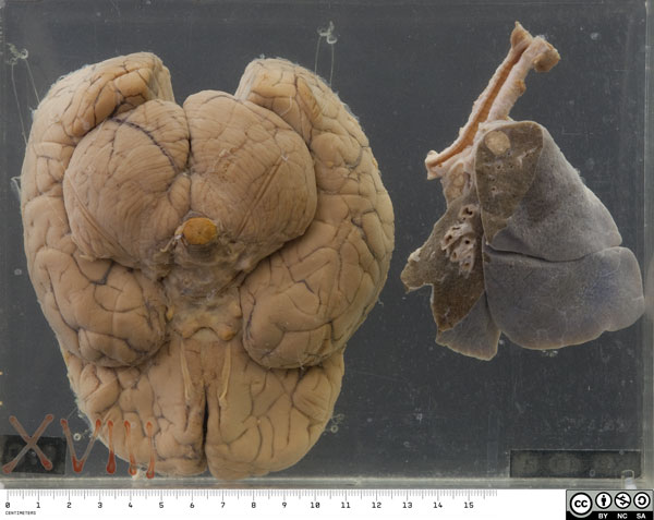 The specimen comprises the right lung and the inferior half of the brain