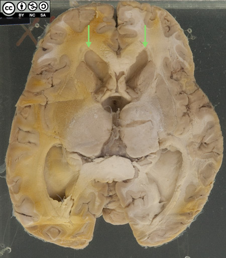 The reverse of the bottle shows an axial section of the brain through the basal ganglia, thalamus and lateral ventricles.