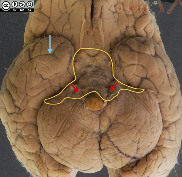 The brain is markedly swollen, with flattened gyri and narrowed sulci.