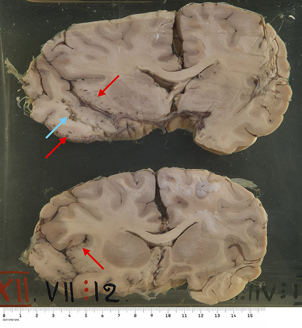 Macroscopically: Two sections of brain are displayed. An area of cerebral softening can be seen situated very superficially over the inferior aspect of the left temporal lobe. Associated with this are numerous pin point areas of congestion and haemorrhage. The meninges over this area are thickened and show the same haemorrhages and congested areas. Marked oedema of the left hemisphere is present, causing compression of the right side.