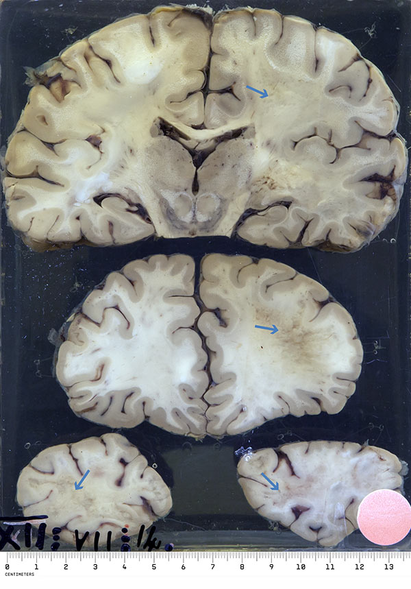 The specimen is three coronal sections through the cerebral hemispheres from above downwards: temporo-parietal, frontal and occipital regions. The white matter of the entire right side is soft and flaky and in the occipital regions both sides are affected. The softening extends up to the cortex with a sharp line of demarcation.