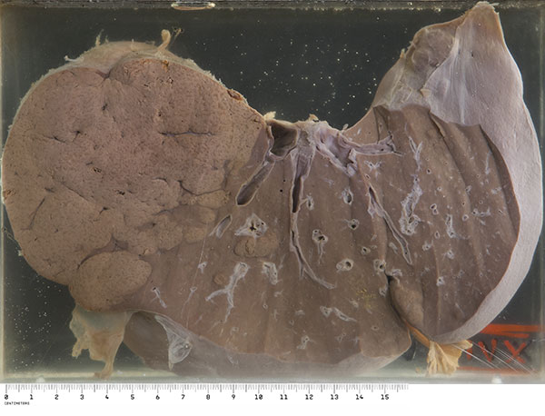 His liver was greatly reduced in size (1025g) and on section the remaining regenerated parenchyma is represented largely by a nodule in the right lobe, and occasional smaller nodules elsewhere. The remaining bulk of the tissue had a fleshy red appearance.