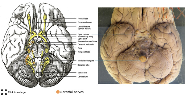 Brain base anatomy diagram small