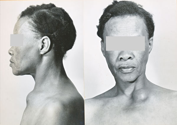 Patient with a tuberculous gland at a common site - overlying the sternocleidomastoid muscle.