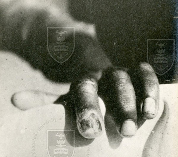 The high rate of venereal and congentital syphilis was a hazard for midwives. This chancre on the finger,  was the result of an accidental infection of a midwife - year unknown.