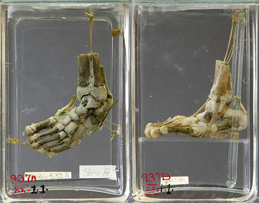 Club foot, Pathology Learning Centre specimen photographs