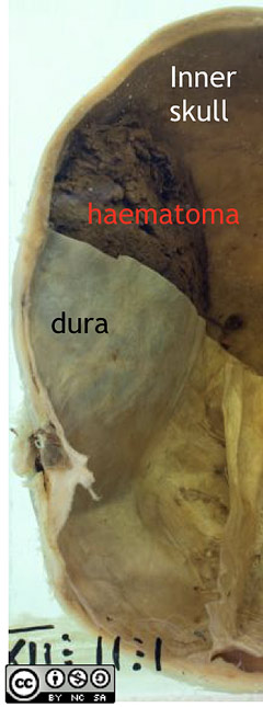 Note the location of the haematoma, it lies between the dura and the internal surface of the skull  i.e. it is epidural or extradural.