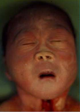 This infant's face (below) is representative of the milder forms of holoprosencephaly