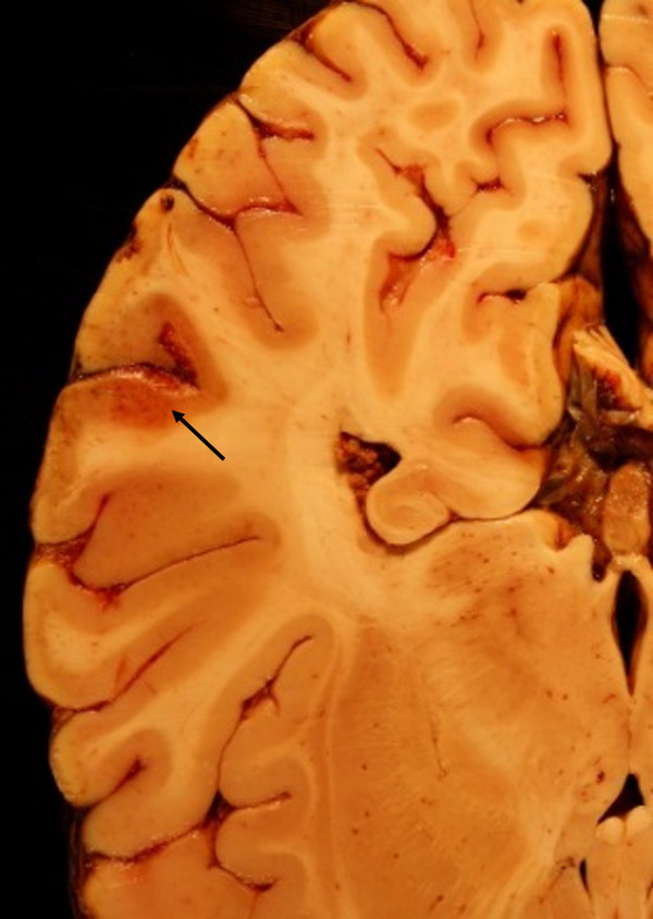 Patchy congestive discolouration of the cortex