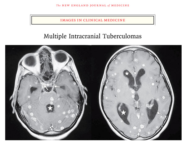 Akhadder A & Boucetta M. Images in Clinical Medicine: Multiple Intracranial Tuberculomas. N Engl J Med 2011; 365:1527, image and link