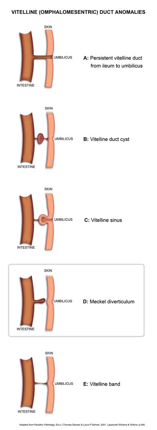 Vitelline duct anomalies diagram