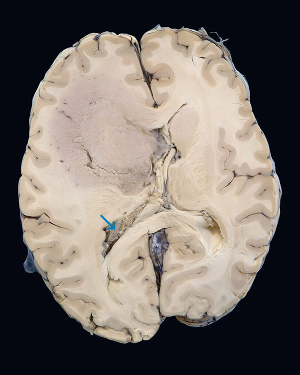 At post mortem the brain showed a partly necrotic mass in the right hemisphere, with multiple shifts. Sections of the brain show an infiltrating mass lesion primarily involving the basal ganglia on the right, with gross expansion and resultant left shift. Tumor has invaded the ventricular system and is growing on the ependymal surfaces of the inferior horns.
