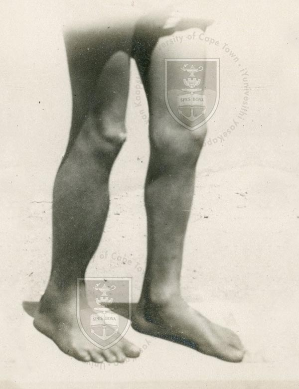 Sabre tibia in a young boy, year 1929