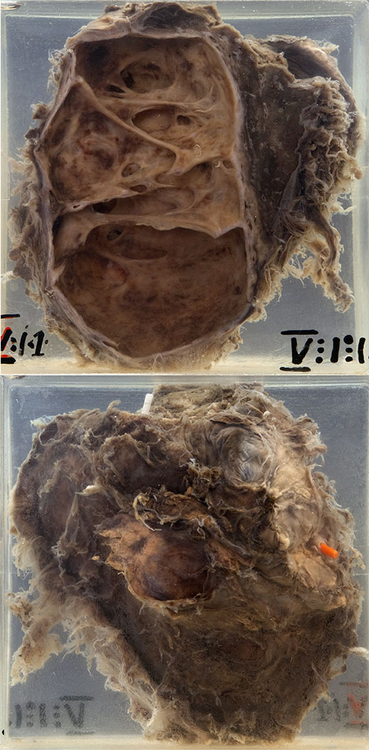 In the mounted specimen one sees a lobe of lung with dense pleural adhesions.