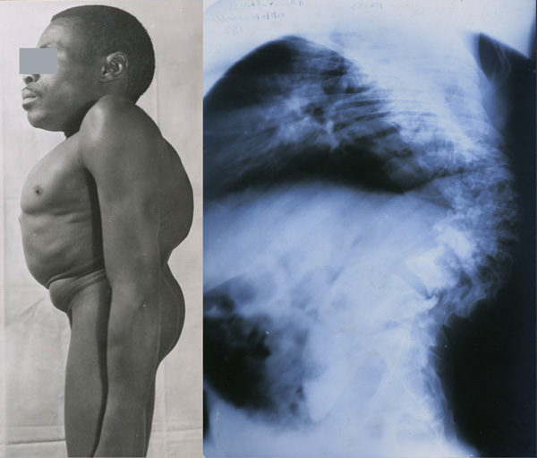 "Photograph and X-ray: severe kyphosis (""hunchback"") as well as scoliosis and loss of height."