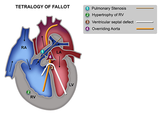 Fallot's tetralogy diagram by UCT Pathology Learning Centre