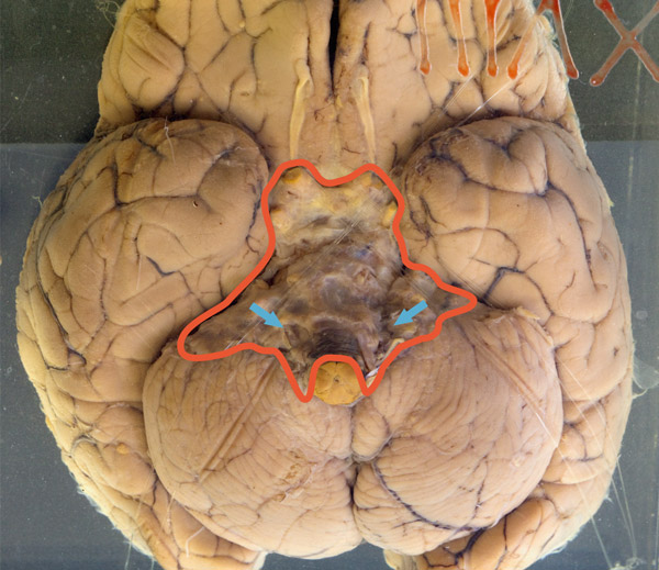 The brain is markedly swollen (with flattened gyri and narrowed sulci).